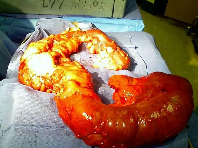 East Orange Focus >> Sarcoma   Bone Cancer Treatment   Soft Tissue Cancer