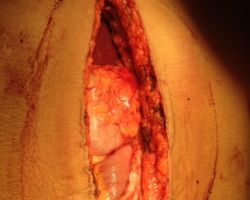 Completion Of New Stomach Pouch Attached To Esophagus